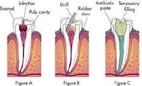 COSMETIC DENTAL TREATMENT IN PATNA CITY