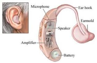 OTICON HEARING AIDS IN PATNA