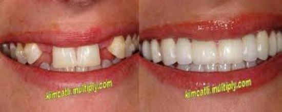 DENTAL IMPLANT CLINIC IN PATNA