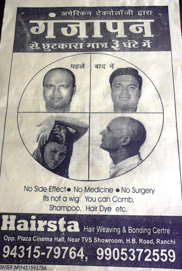 HAIR BALDNESS IN RANCHI
