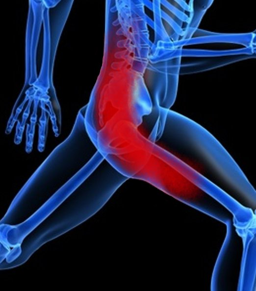SCIATICA TREATMENT IN PATNA