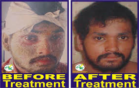 PSORCOSIS TREATMENT CENTRE IN BHAGALPUR