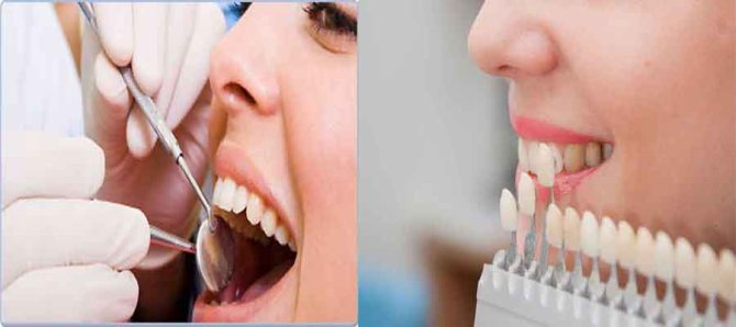 TOP DENTAL CLINIC IN RAMGARH