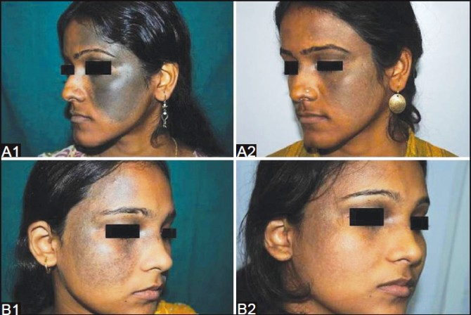 SKIN CARE TREATMENT LAHARDAGA IN RANCHI