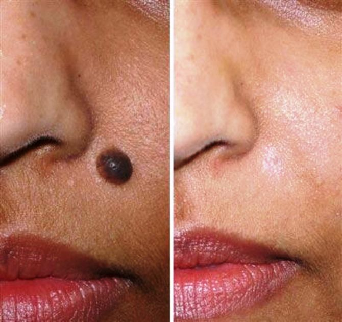 top mole removal center in daltonganj