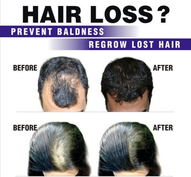 HAIR FALL TREATEMENT CENTER IN RANCHI